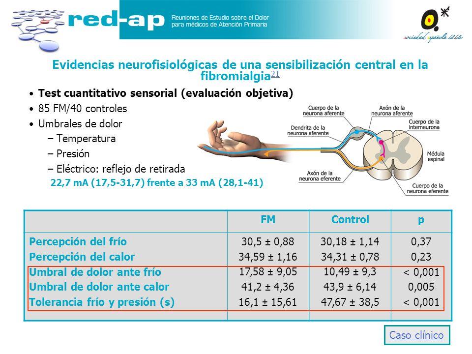 Evidencias neurofisiológicas de una sensibilización central en la fibromialgia 21 21 Test cuantitativo sensorial (evaluación objetiva) 85 FM/40 contro