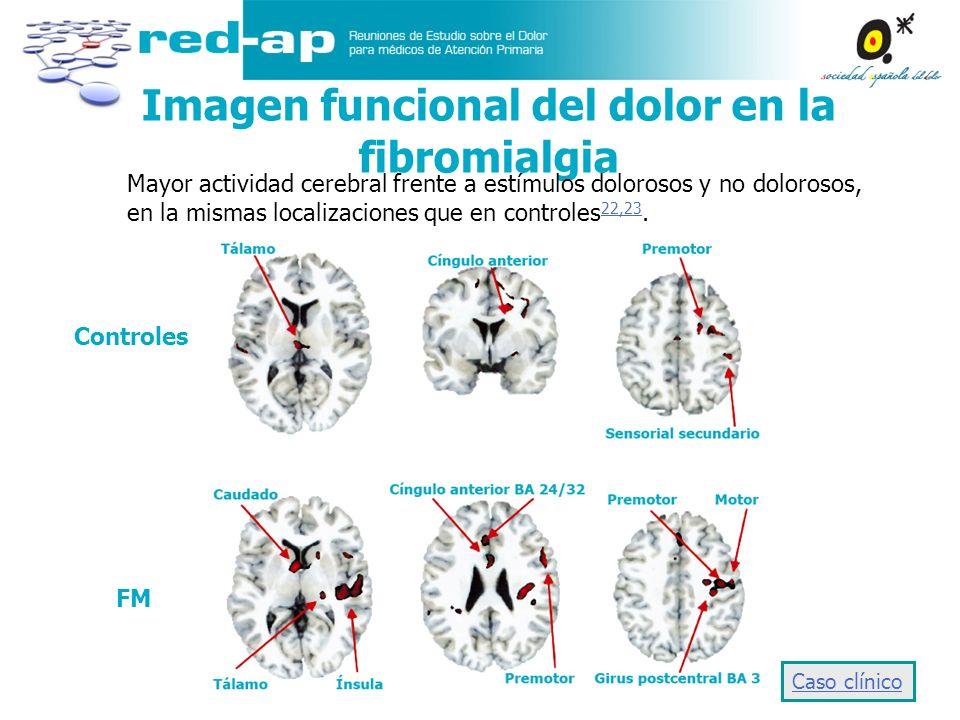 Imagen funcional del dolor en la fibromialgia Mayor actividad cerebral frente a estímulos dolorosos y no dolorosos, en la mismas localizaciones que en