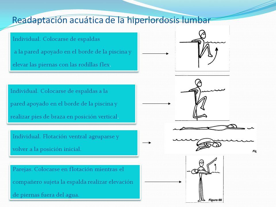 Readaptación acuática de la hiperlordosis lumbar Individual.