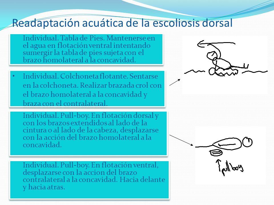 Readaptación acuática de la escoliosis dorsal Individual.