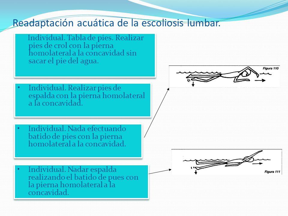 Readaptación acuática de la escoliosis lumbar.Individual.