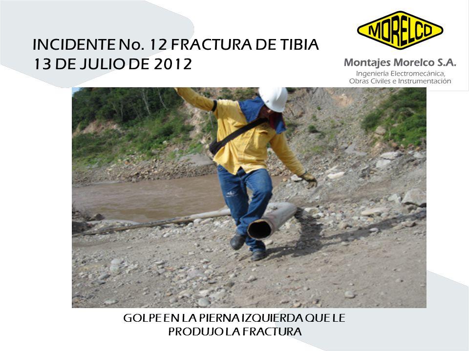 INCIDENTE No. 12 FRACTURA DE TIBIA 13 DE JULIO DE 2012 GOLPE EN LA PIERNA IZQUIERDA QUE LE PRODUJO LA FRACTURA