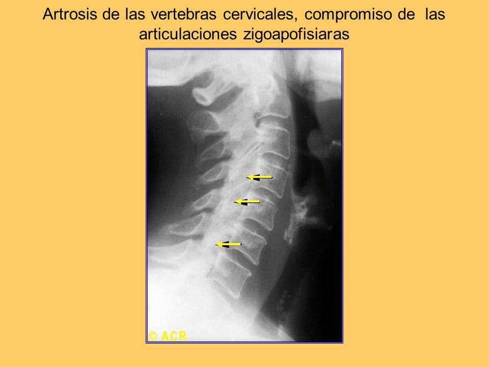Artrosis de las vertebras cervicales, compromiso de las articulaciones zigoapofisiaras