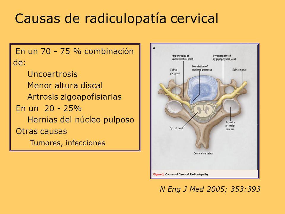N Eng J Med 2005; 353:393 Causas de radiculopatía cervical En un 70 - 75 % combinación de: Uncoartrosis Menor altura discal Artrosis zigoapofisiarias En un 20 - 25% Hernias del núcleo pulposo Otras causas Tumores, infecciones