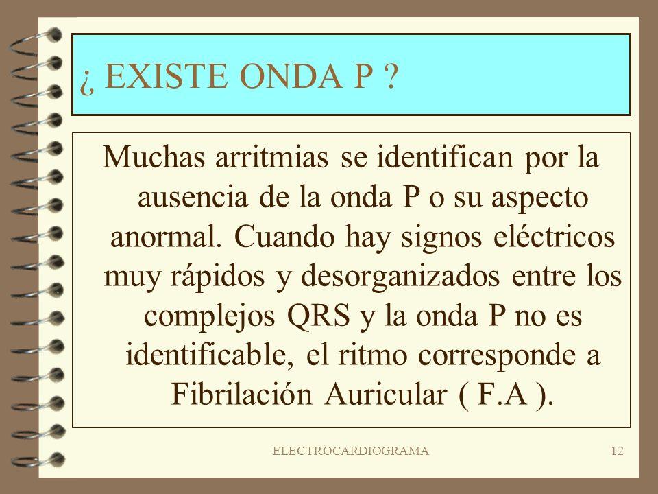 ELECTROCARDIOGRAMA11 ¿EXISTE UN COMPLEJO QRS DE APARIENCIA NORMAL ? Es importante responder a esta pregunta primero ya que identificará la mayor parte