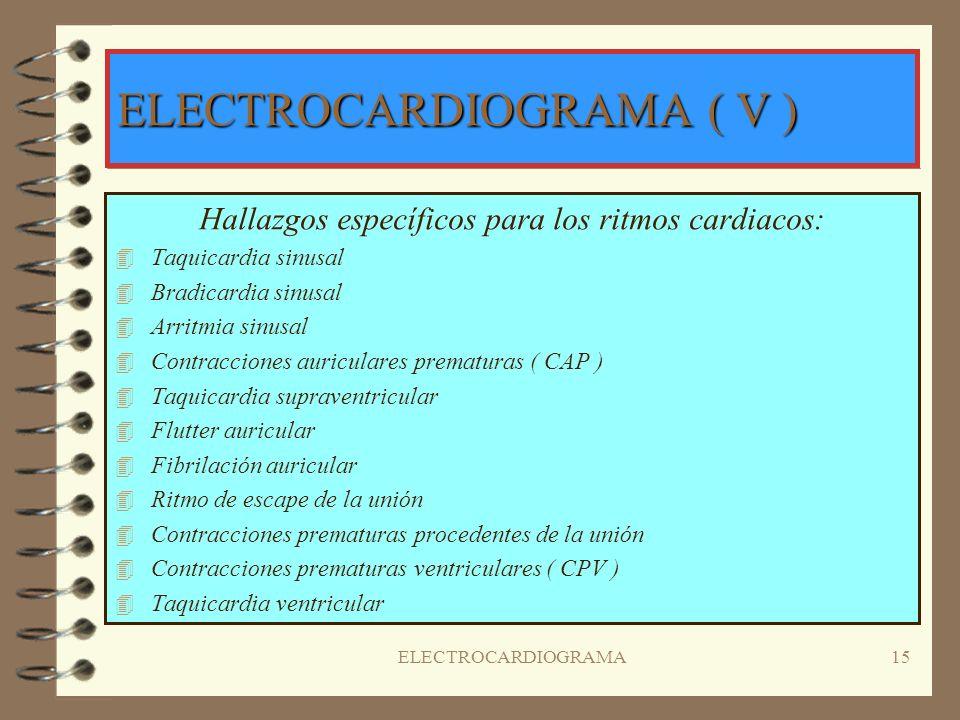 ELECTROCARDIOGRAMA14 PROPIEDADES DE LAS CÉLULAS CARDIACAS 4I4INOTROPISMO o CONTRACTIBILIDAD: Es la capacidad que tiene el músculo cardíaco de transfor