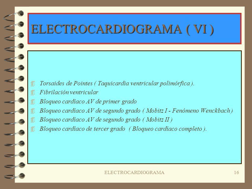 ELECTROCARDIOGRAMA15 ELECTROCARDIOGRAMA ( V ) Hallazgos específicos para los ritmos cardiacos: 4T4Taquicardia sinusal 4B4Bradicardia sinusal 4A4Arritm