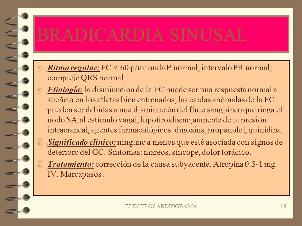 ELECTROCARDIOGRAMA17 TAQUICARDIA SINUSAL 4R4Ritmo regular: 100-180 p/m ( aumentado en lactantes ); onda P normal; complejo QRS normal. 4E4Etiología: e