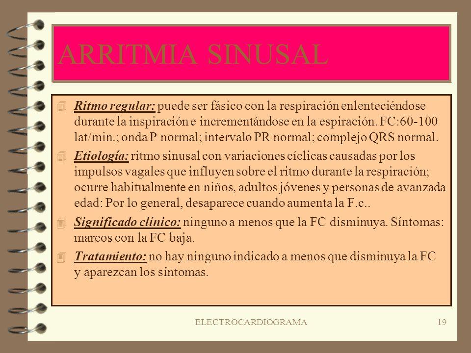ELECTROCARDIOGRAMA18 BRADICARDIA SINUSAL 4R4Ritmo regular: FC < 60 p/m; onda P normal; intervalo PR normal; complejo QRS normal. 4E4Etiología: la dism