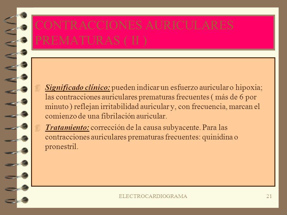 ELECTROCARDIOGRAMA20 CONTRACCIONES AURICULARES PREMATURAS ( I ) 4R4RITMO IRREGULAR a causa de los latidos ectópicos seguidos de una pausa compensatori