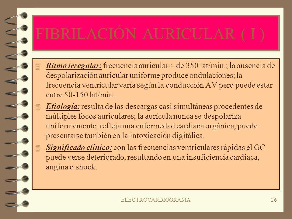 ELECTROCARDIOGRAMA25 FLUTTER AURICULAR ( II ) 4T4Tratamiento: CARDIOVERSIÓN; digoxina si la cardioversión no es utilizada o no tiene éxito; Quinidina