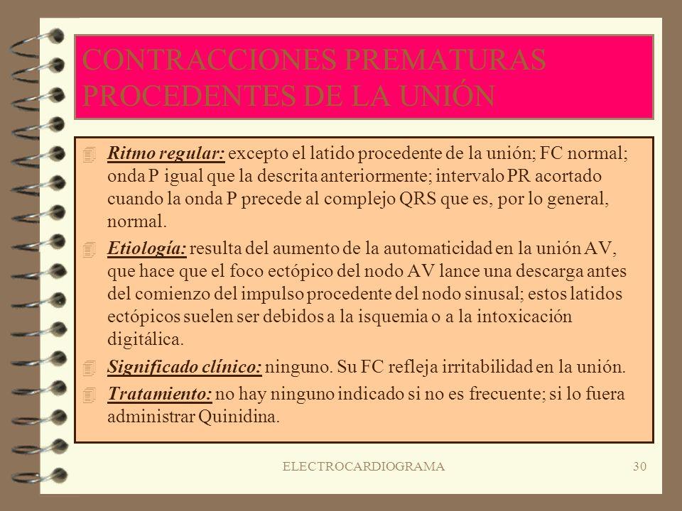 ELECTROCARDIOGRAMA29 RITMO DE ESCAPE DE LA UNIÓN ( II ) 4T4Tratamiento: corrección de la causa subyacente; si es persistente o si se producen síntomas