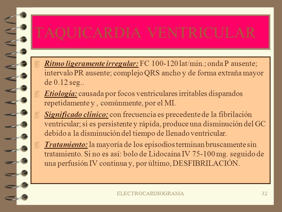 ELECTROCARDIOGRAMA31 CONTRACCIONES VENTRICULARES PREMATURAS ( C.V.P ) 4R4Ritmo irregular debido a los latidos ectópicos seguidos de una pausa compensa