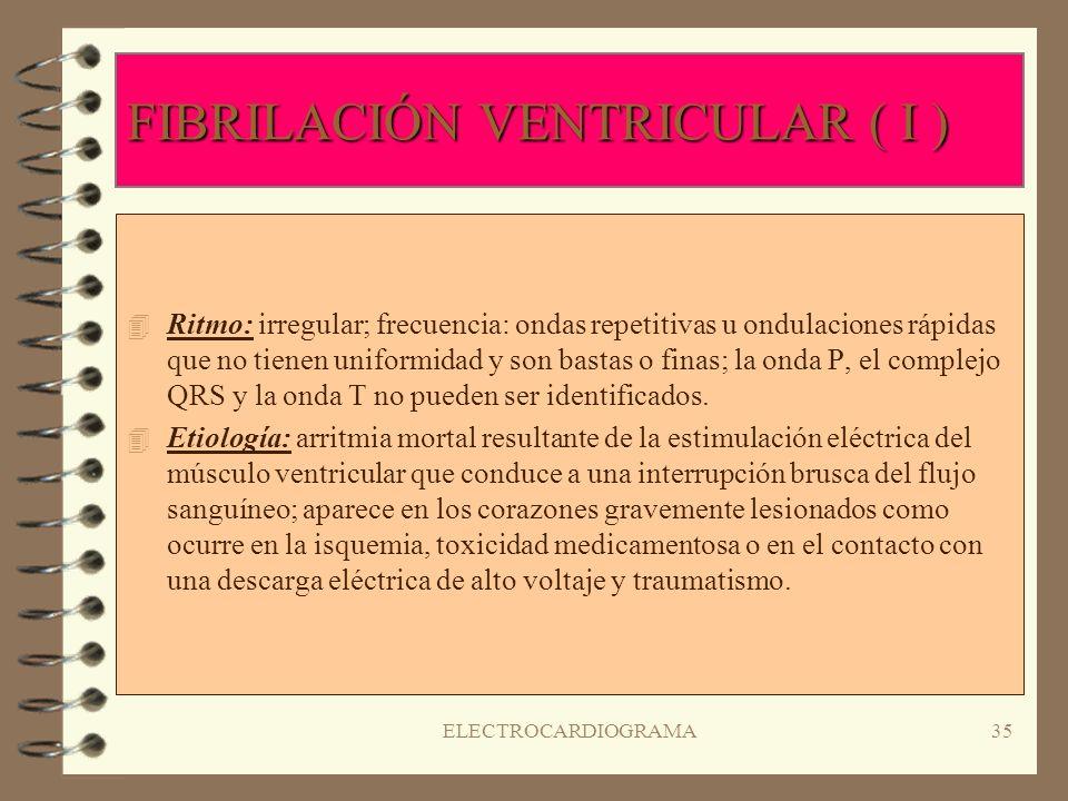 ELECTROCARDIOGRAMA34 TORSAIDE DE POINTES ( TAQUICARDIA VENTRICULAR POLIMÓRFICA ) ( II ) 4S4Significado clínico: palpitaciones que pueden provocar el d