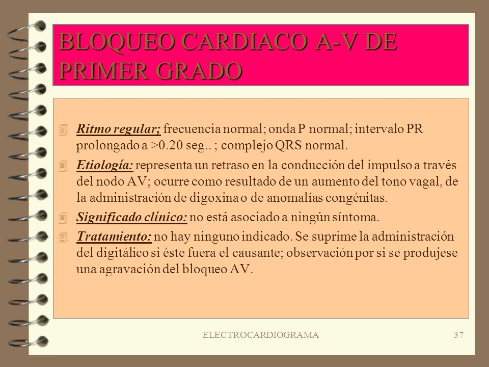 ELECTROCARDIOGRAMA36 FIBRILACIÓN VENTRICULAR ( II ) 4S4Significado clínico: pérdida de conciencia; disminuciones de presión sanguínea y el pulso perif
