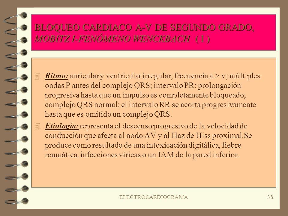 ELECTROCARDIOGRAMA37 BLOQUEO CARDIACO A-V DE PRIMER GRADO 4R4Ritmo regular; frecuencia normal; onda P normal; intervalo PR prolongado a >0.20 seg.. ;