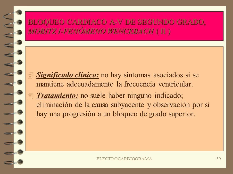 ELECTROCARDIOGRAMA38 BLOQUEO CARDIACO A-V DE SEGUNDO GRADO, MOBITZ I-FENÓMENO WENCKBACH ( ( ( ( I ) 4R4Ritmo: auricular y ventricular irregular; frecu