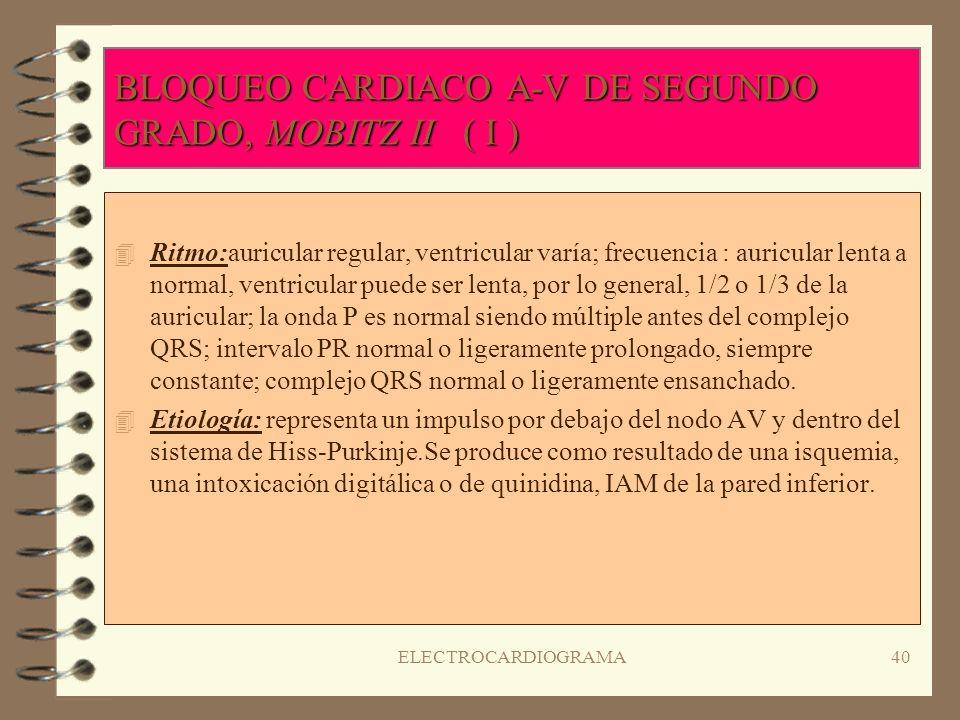 ELECTROCARDIOGRAMA39 BLOQUEO CARDIACO A-V DE SEGUNDO GRADO, MOBITZ I-FENÓMENO WENCKBACH ( II ) 4S4Significado clínico: no hay síntomas asociados si se