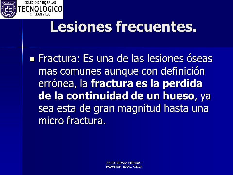 JULIO ABDALA MEDINA - PROFESOR EDUC.FÍSICA Lesiones frecuentes.