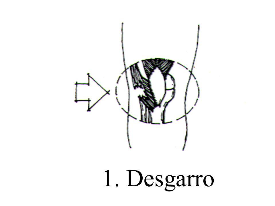 1. Desgarro
