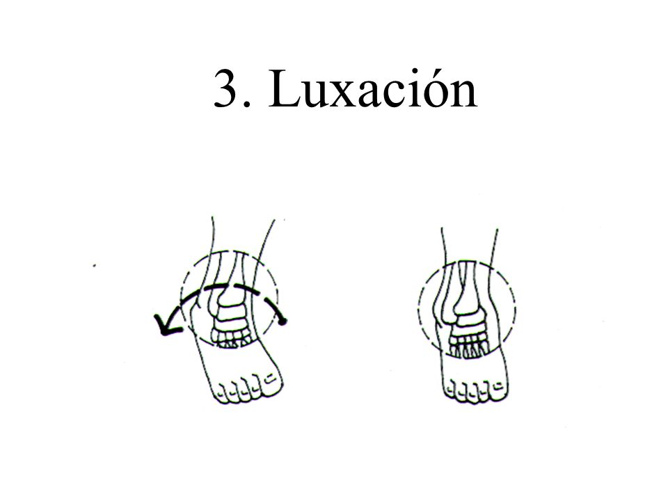 3. Luxación