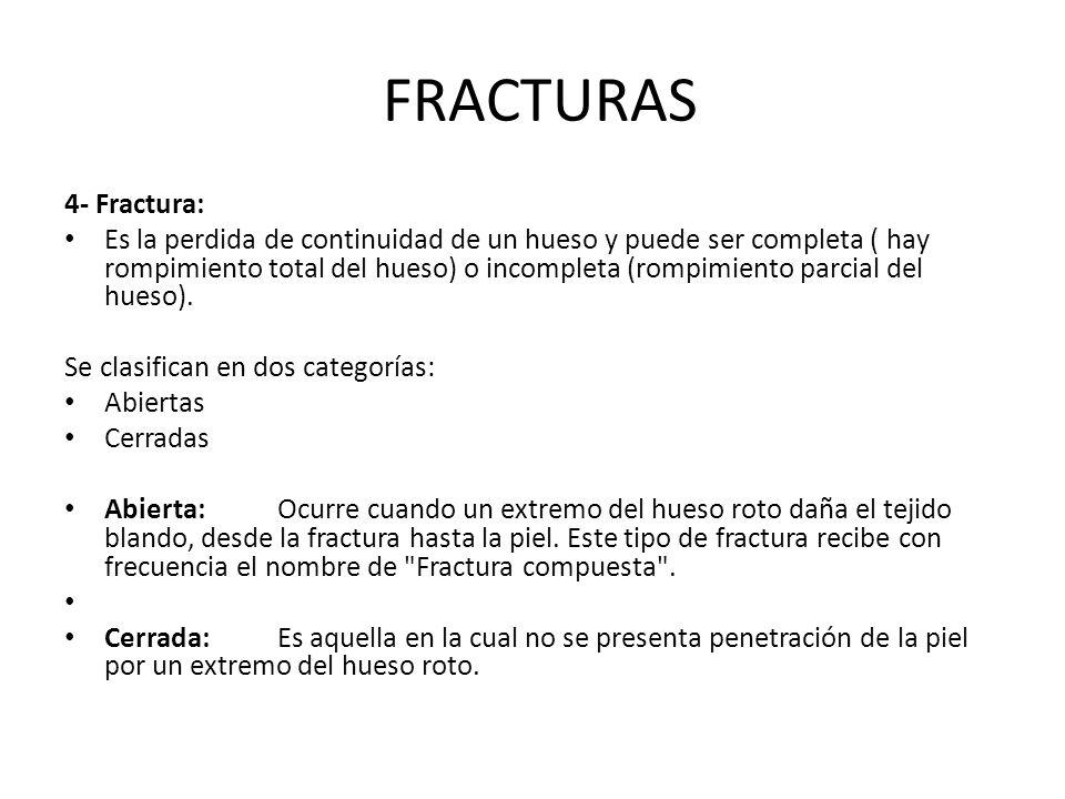 FRACTURAS 4- Fractura: Es la perdida de continuidad de un hueso y puede ser completa ( hay rompimiento total del hueso) o incompleta (rompimiento parc