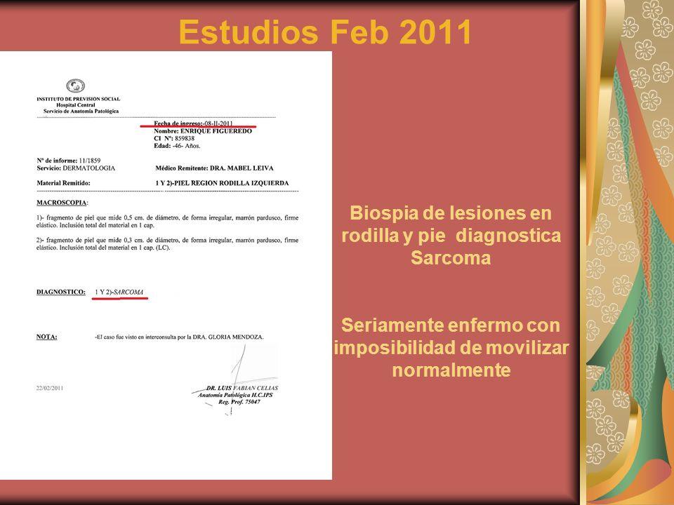 Estudios Feb 2011 Biospia de lesiones en rodilla y pie diagnostica Sarcoma Seriamente enfermo con imposibilidad de movilizar normalmente