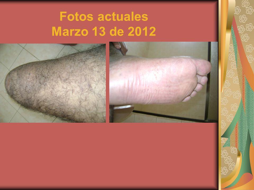Fotos actuales Marzo 13 de 2012