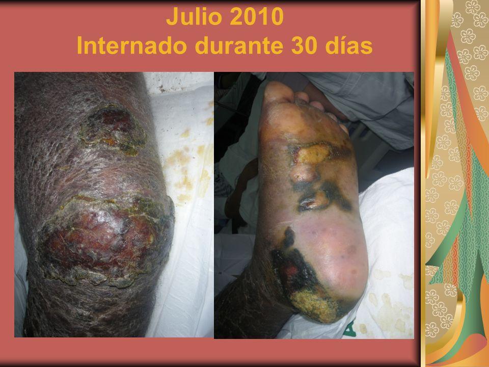 Julio 2010 Internado durante 30 días