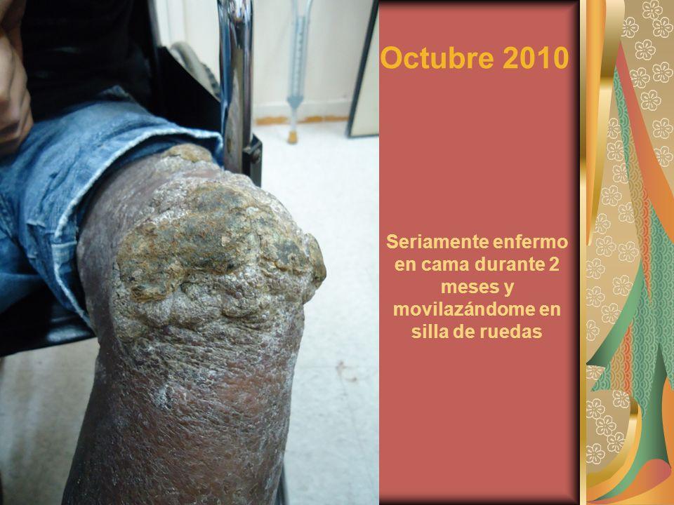Octubre 2010 Seriamente enfermo en cama durante 2 meses y movilazándome en silla de ruedas