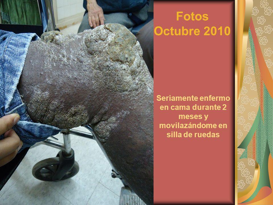 Fotos Octubre 2010 Seriamente enfermo en cama durante 2 meses y movilazándome en silla de ruedas