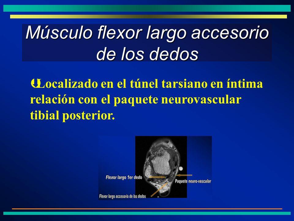 Músculo flexor largo accesorio de los dedos ÞLocalizado en el túnel tarsiano en íntima relación con el paquete neurovascular tibial posterior.