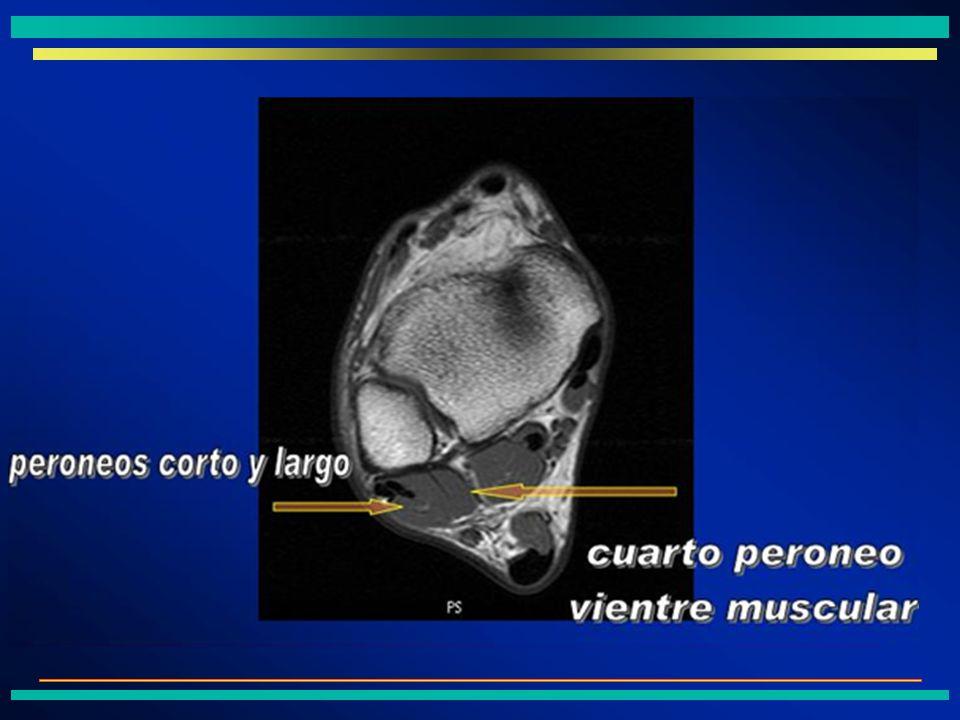 Otros músculos accesorios ÞPrevalencia: 14-30% según las series.