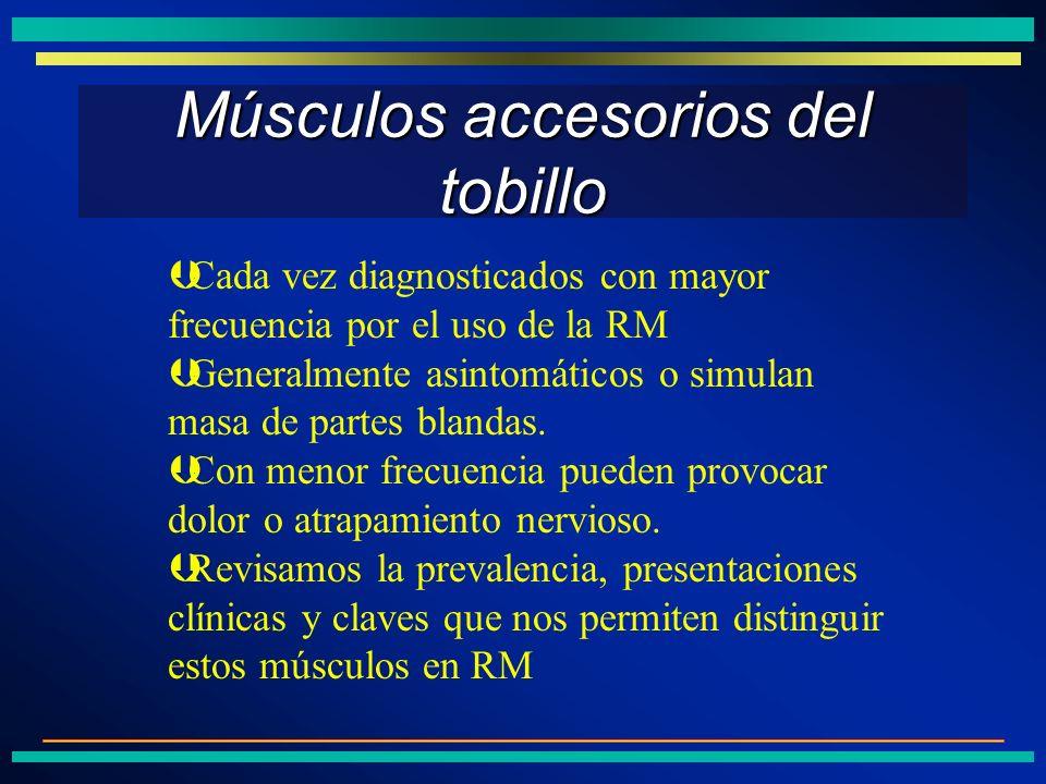 Músculos accesorios del tobillo ÞCada vez diagnosticados con mayor frecuencia por el uso de la RM ÞGeneralmente asintomáticos o simulan masa de partes