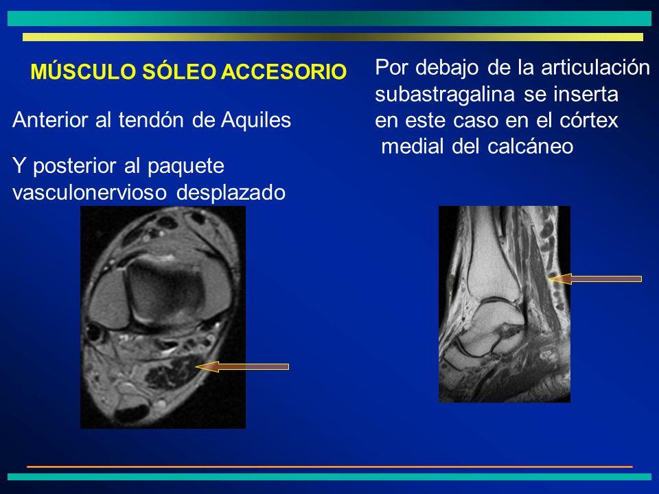 Por debajo de la articulación subastragalina se inserta en este caso en el córtex medial del calcáneo Anterior al tendón de Aquiles Y posterior al paq