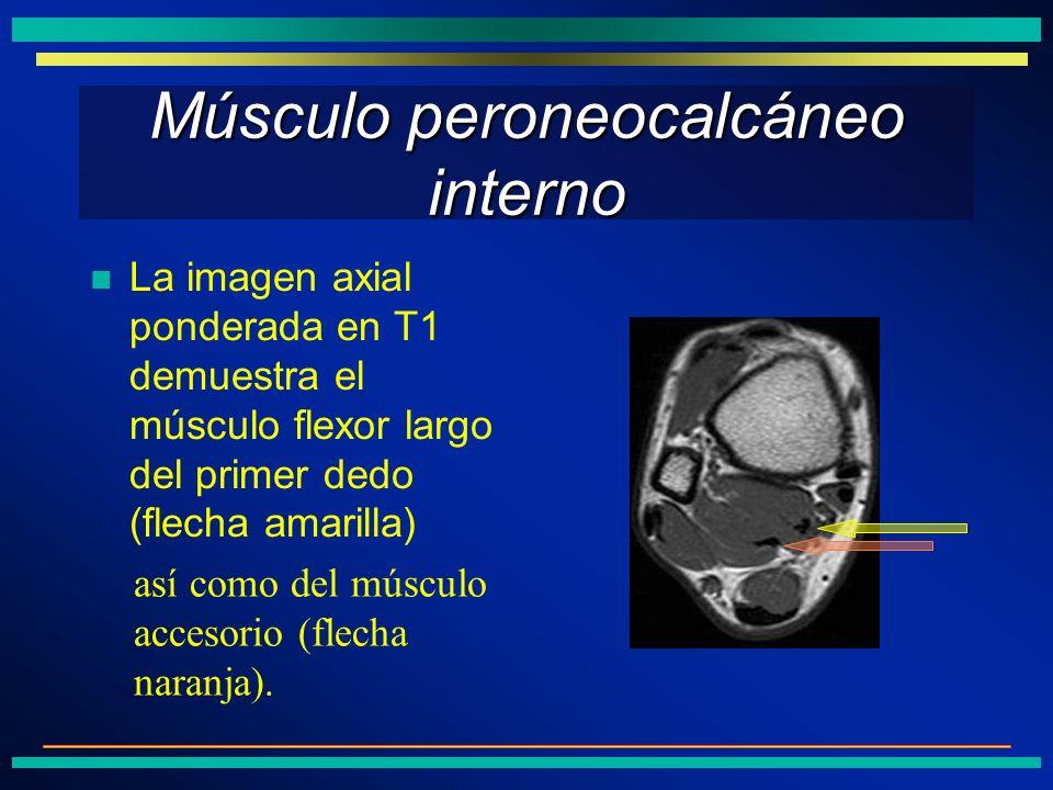 Músculo peroneocalcáneo interno La imagen axial ponderada en T1 demuestra el músculo flexor largo del primer dedo (flecha amarilla) así como del múscu