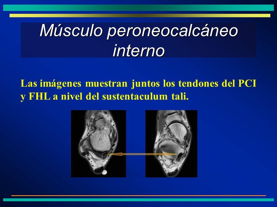 Músculo peroneocalcáneo interno Las imágenes muestran juntos los tendones del PCI y FHL a nivel del sustentaculum tali.
