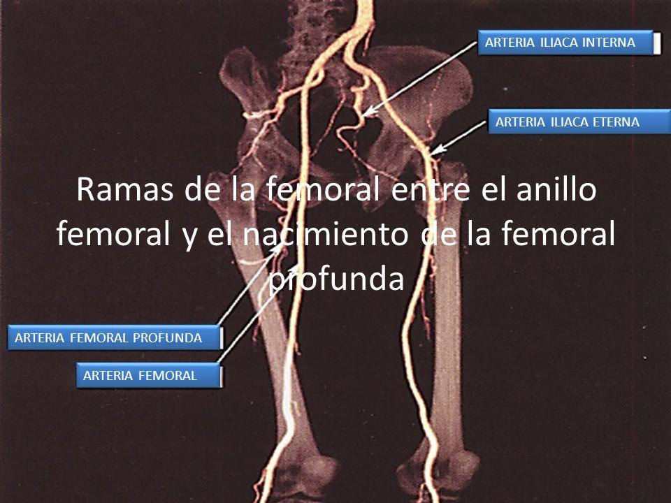 Ramas de la femoral entre el anillo femoral y el nacimiento de la femoral profunda ARTERIA FEMORAL PROFUNDA ARTERIA FEMORAL ARTERIA ILIACA INTERNA ART