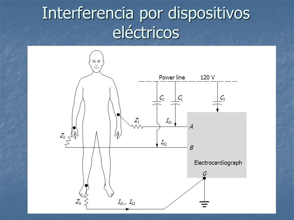 Interferencia por dispositivos eléctricos Electrocardiograph A Power line120 V B G C3C3 C1C1 Z1Z1 Z2Z2 ZGZG C2C2 I d1 I d2 I d1+ I d2