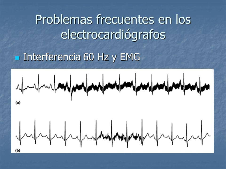 Problemas frecuentes en los electrocardiógrafos Interferencia 60 Hz y EMG Interferencia 60 Hz y EMG