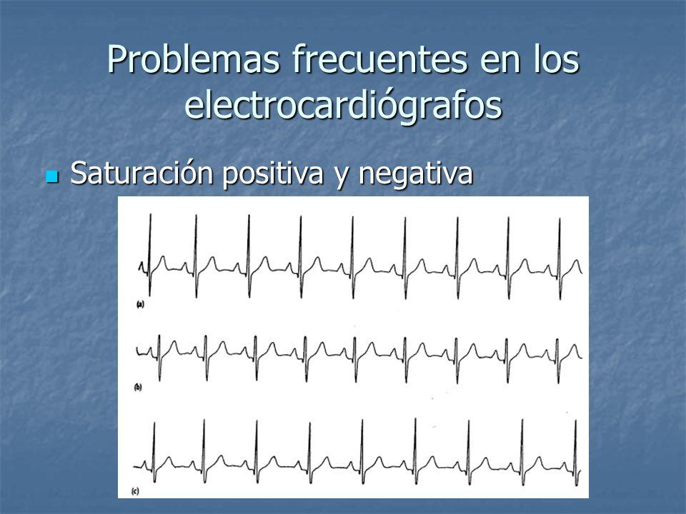 Problemas frecuentes en los electrocardiógrafos Saturación positiva y negativa Saturación positiva y negativa
