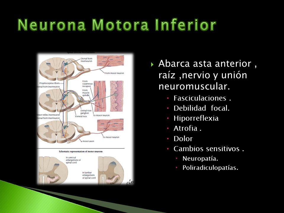 Abarca asta anterior, raíz,nervio y unión neuromuscular. Fasciculaciones. Debilidad focal. Hiporreflexia Atrofia. Dolor Cambios sensitivos. Neuropatía