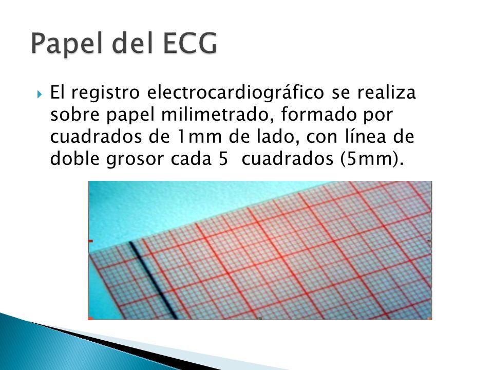 El registro electrocardiográfico se realiza sobre papel milimetrado, formado por cuadrados de 1mm de lado, con línea de doble grosor cada 5 cuadrados