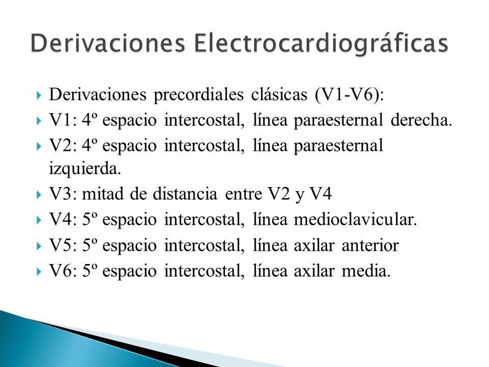 Derivaciones precordiales clásicas (V1-V6): V1: 4º espacio intercostal, línea paraesternal derecha. V2: 4º espacio intercostal, línea paraesternal izq