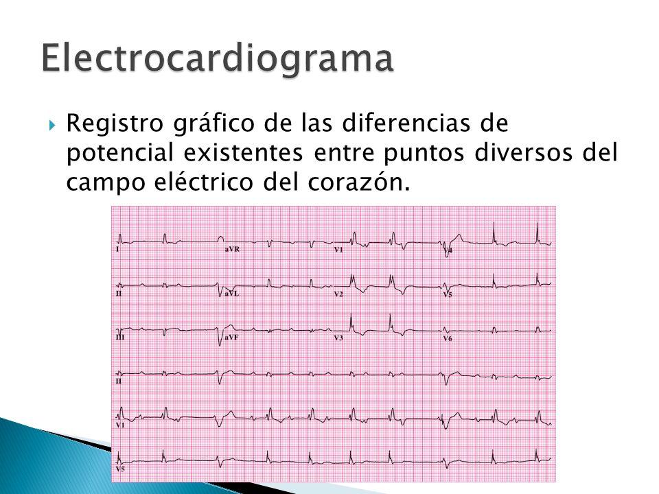 Puntos de contacto entre el electrocardiógrafo y la superficie del paciente, por donde ser captan los potenciales eléctricos generados por el Corazón.