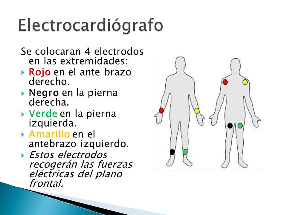 Se colocaran 4 electrodos en las extremidades: Rojo en el ante brazo derecho. Negro en la pierna derecha. Verde en la pierna izquierda. Amarillo en el