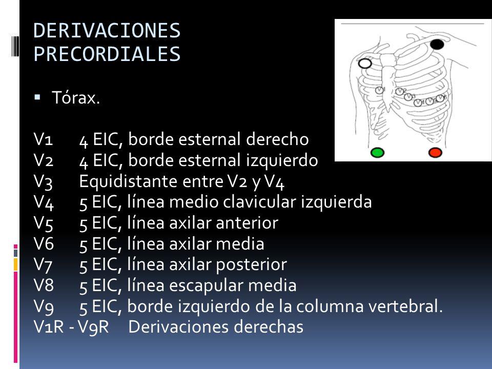 DERIVACIONES PRECORDIALES Tórax. V14 EIC, borde esternal derecho V2 4 EIC, borde esternal izquierdo V3Equidistante entre V2 y V4 V45 EIC, línea medio