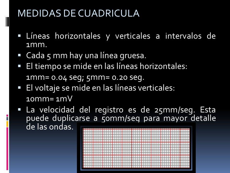 MEDIDAS DE CUADRICULA Líneas horizontales y verticales a intervalos de 1mm. Cada 5 mm hay una línea gruesa. El tiempo se mide en las líneas horizontal
