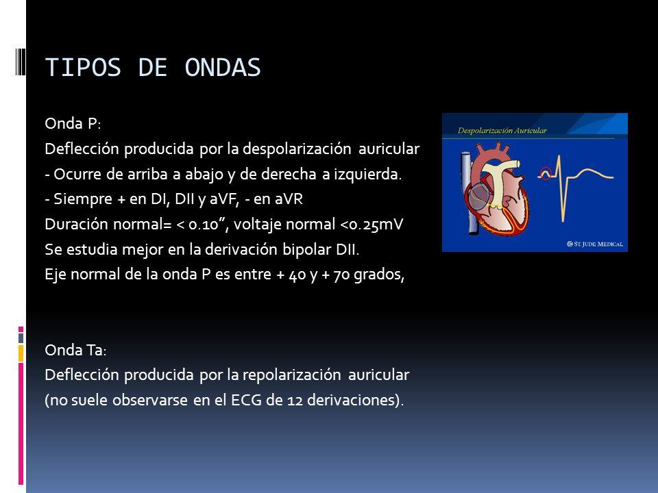 TIPOS DE ONDAS Onda P: Deflección producida por la despolarización auricular - Ocurre de arriba a abajo y de derecha a izquierda. - Siempre + en DI, D