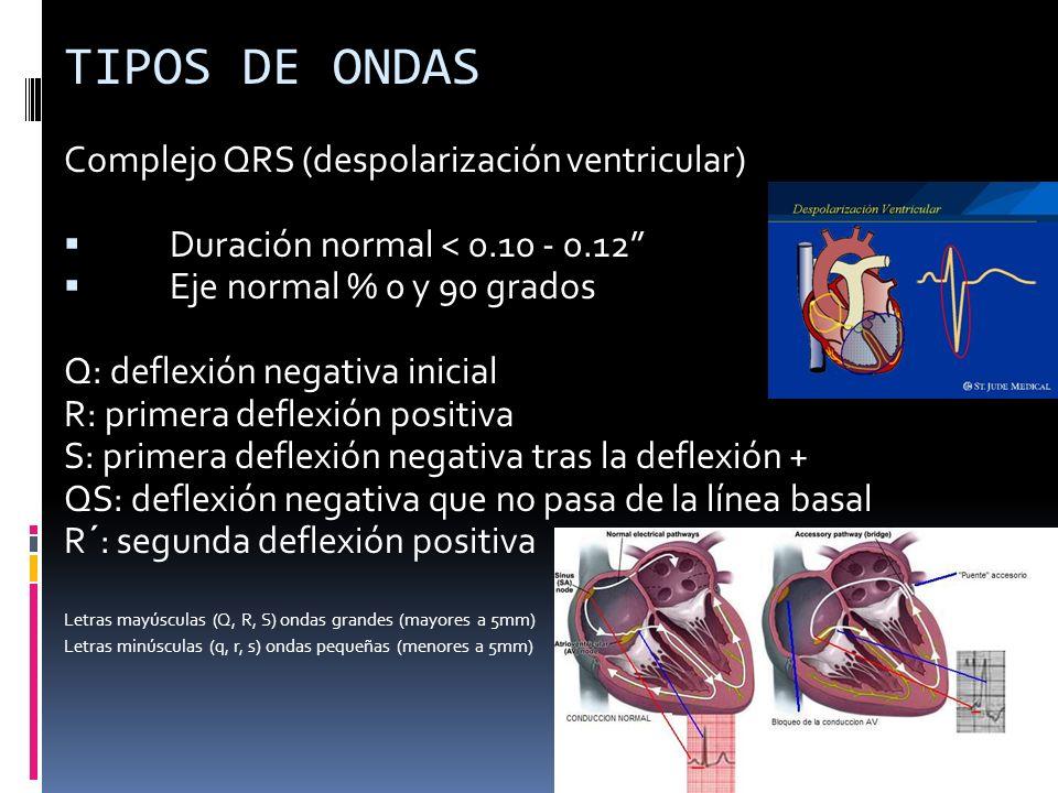 TIPOS DE ONDAS Complejo QRS (despolarización ventricular) Duración normal < 0.10 - 0.12 Eje normal % 0 y 90 grados Q: deflexión negativa inicial R: pr